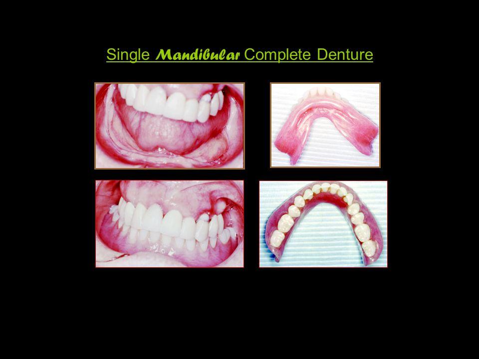 Single Mandibular Complete Denture