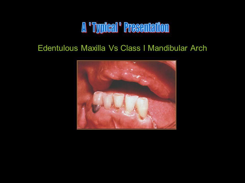 Edentulous Maxilla Vs Class I Mandibular Arch