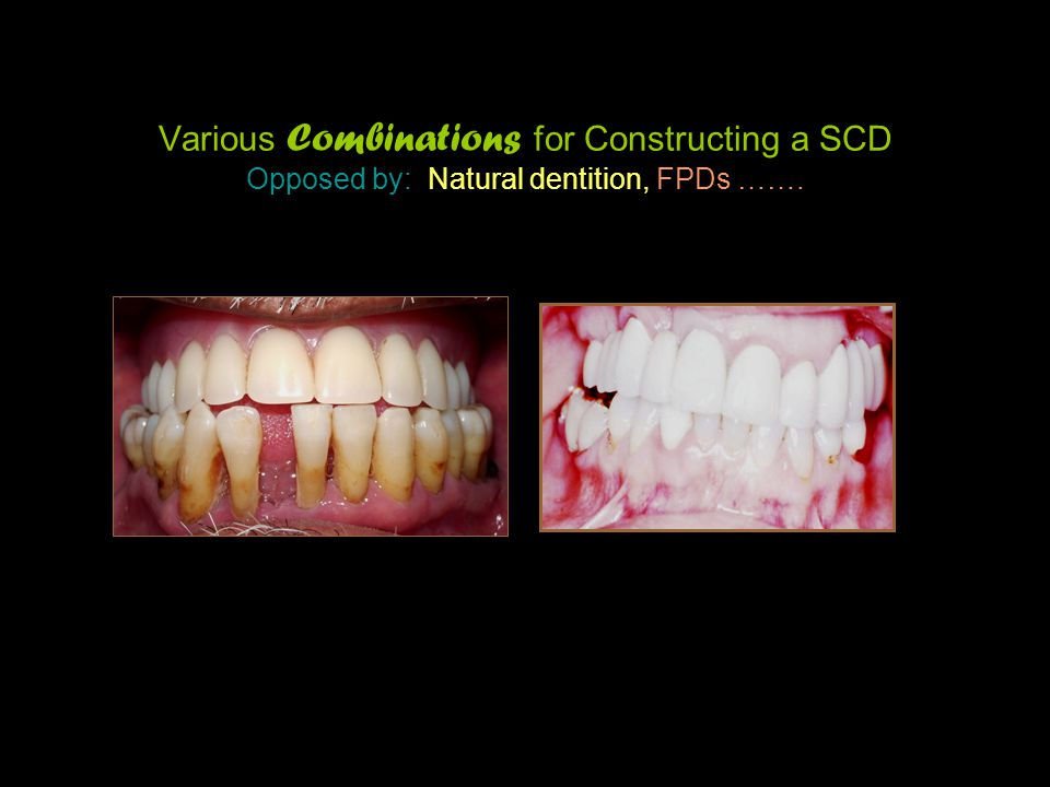 Various Combinations for Constructing a SCD Opposed by: Natural dentition, FPDs …….