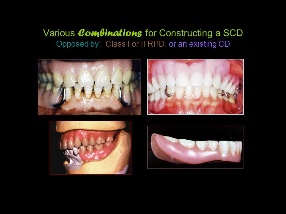 Various Combinations for Constructing a SCD Opposed by: Class I or II RPD, or an existing CD
