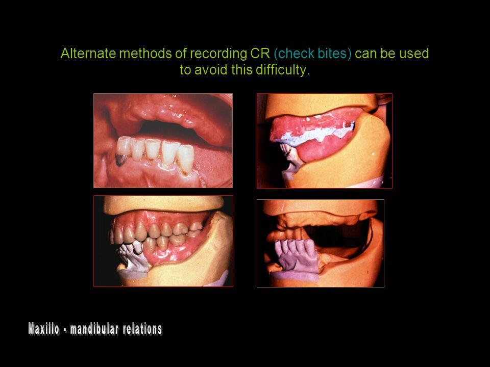 Maxillo - mandibular relations