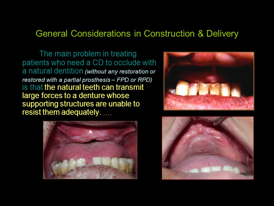 General Considerations in Construction & Delivery