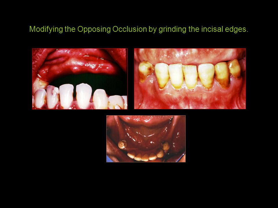 Modifying the Opposing Occlusion by grinding the incisal edges.