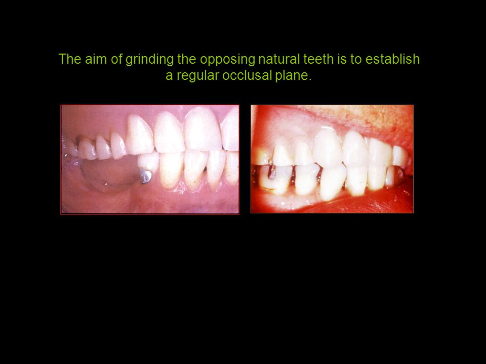 The aim of grinding the opposing natural teeth is to establish a regular occlusal plane.