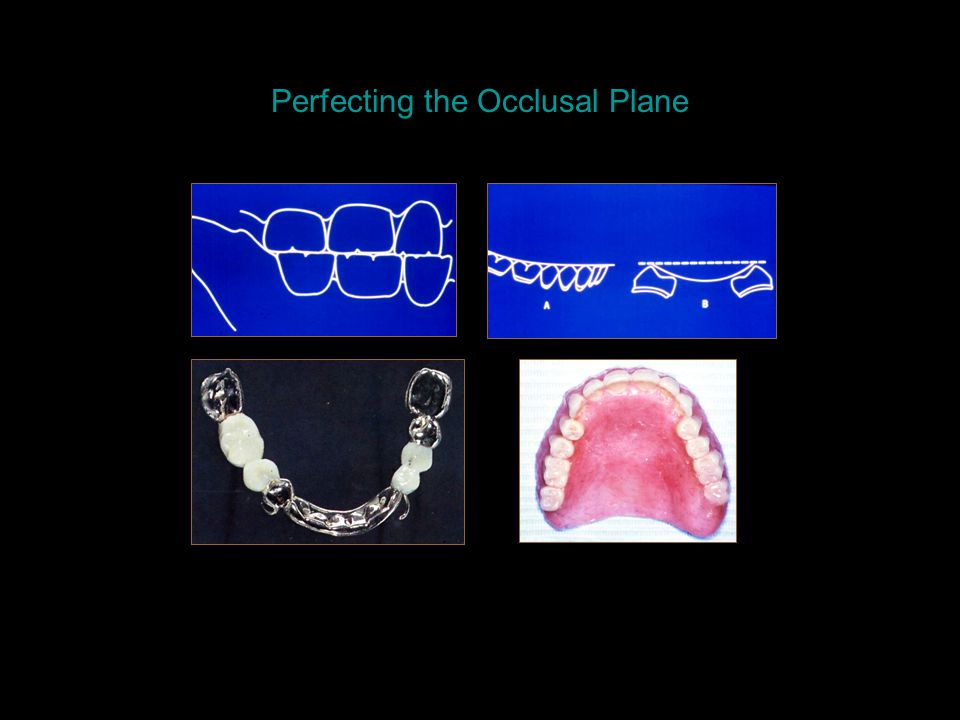 Perfecting the Occlusal Plane