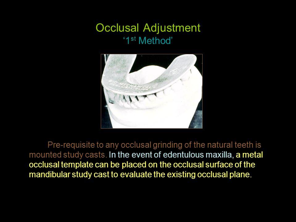 Occlusal Adjustment '1st Method'