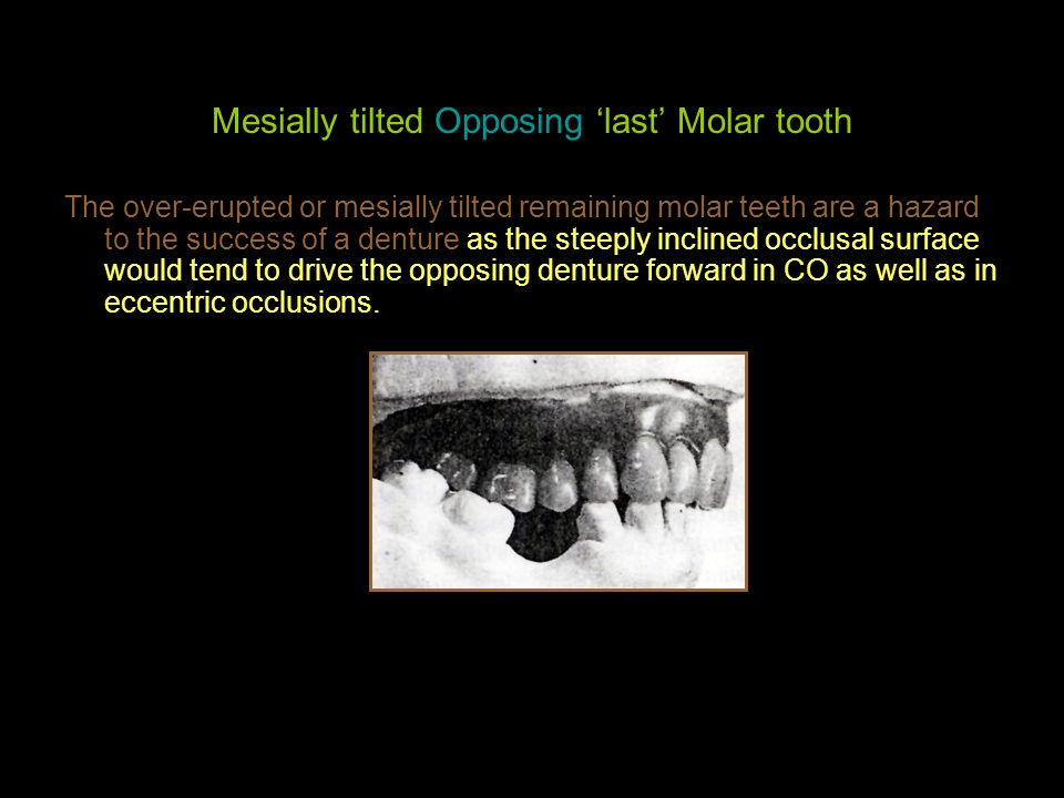 Mesially tilted Opposing 'last' Molar tooth
