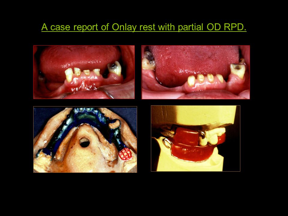 A case report of Onlay rest with partial OD RPD.
