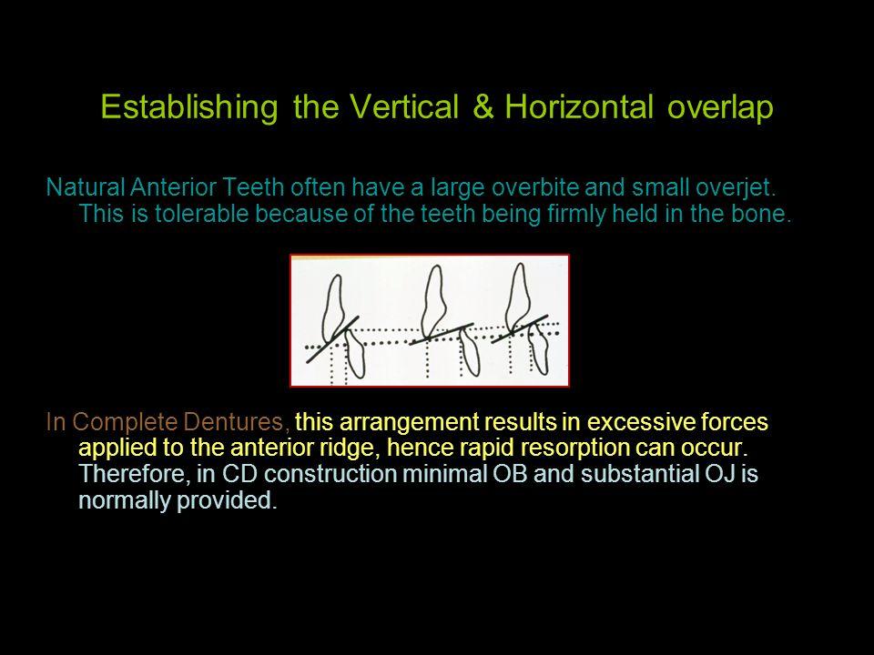 Establishing the Vertical & Horizontal overlap