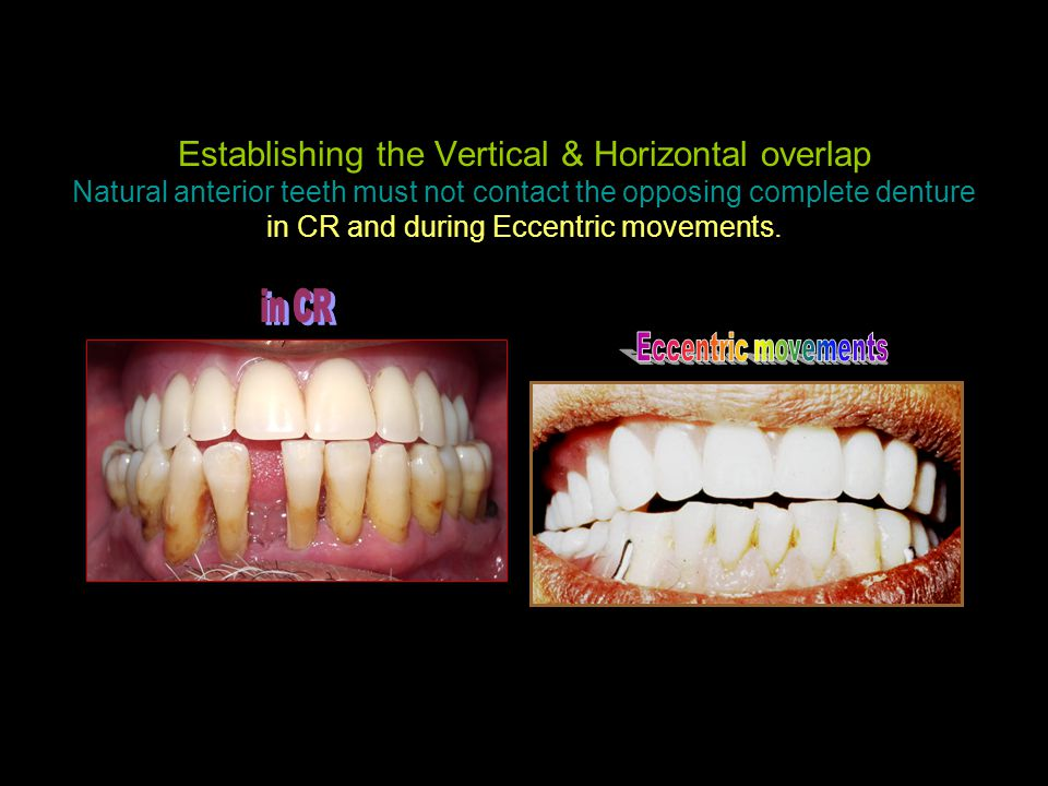 Establishing the Vertical & Horizontal overlap Natural anterior teeth must not contact the opposing complete denture in CR and during Eccentric movements.
