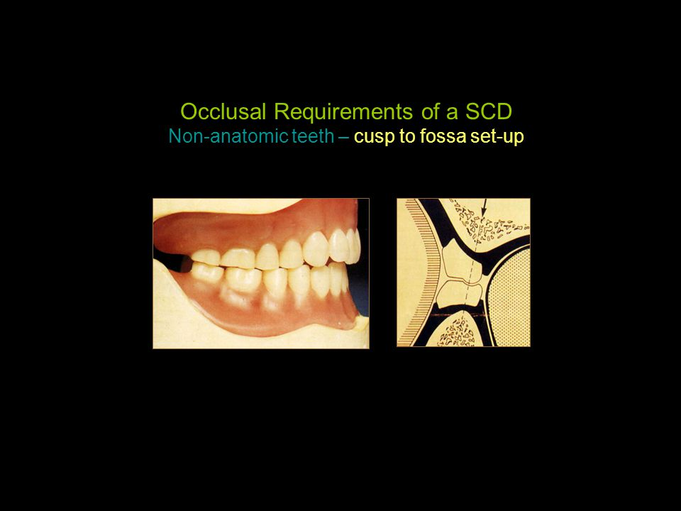 Occlusal Requirements of a SCD Non-anatomic teeth – cusp to fossa set-up