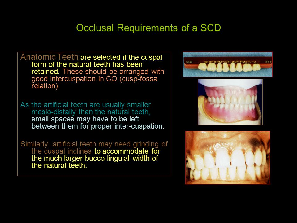 Occlusal Requirements of a SCD