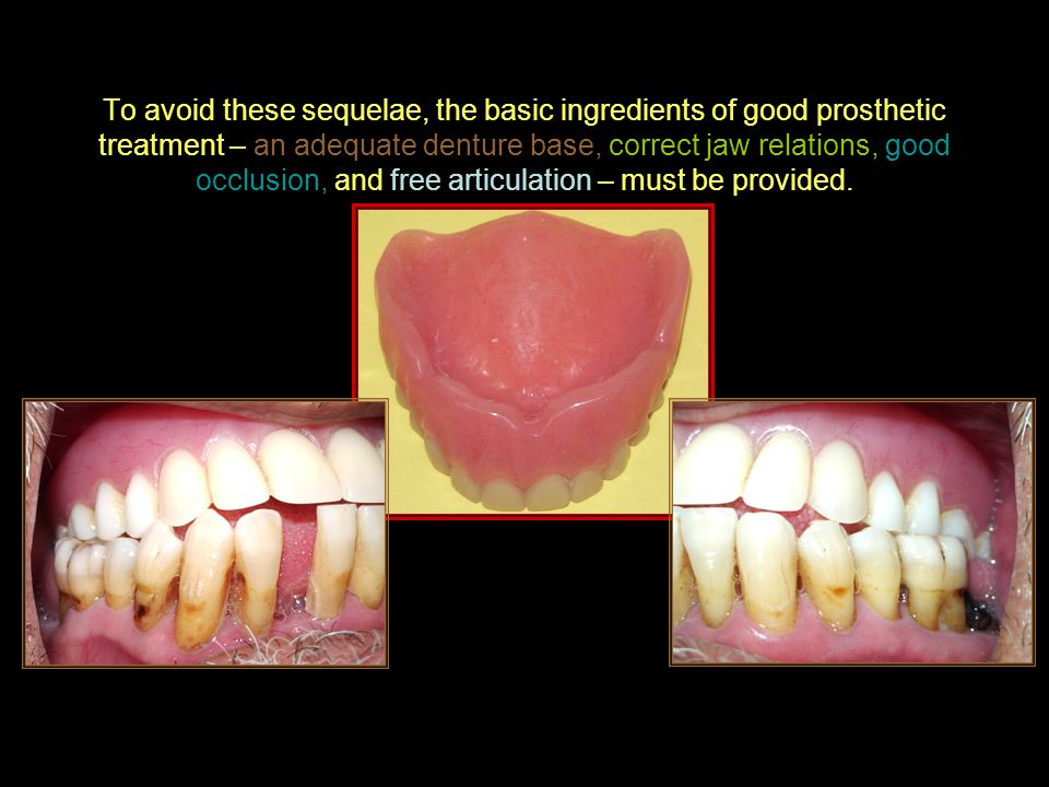 To avoid these sequelae, the basic ingredients of good prosthetic treatment – an adequate denture base, correct jaw relations, good occlusion, and free articulation – must be provided.