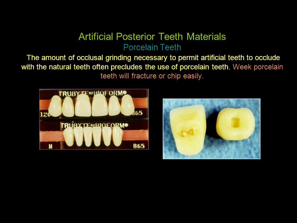 Artificial Posterior Teeth Materials Porcelain Teeth The amount of occlusal grinding necessary to permit artificial teeth to occlude with the natural teeth often precludes the use of porcelain teeth.