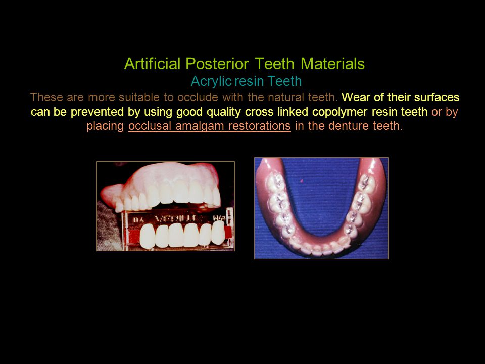 Artificial Posterior Teeth Materials Acrylic resin Teeth These are more suitable to occlude with the natural teeth.