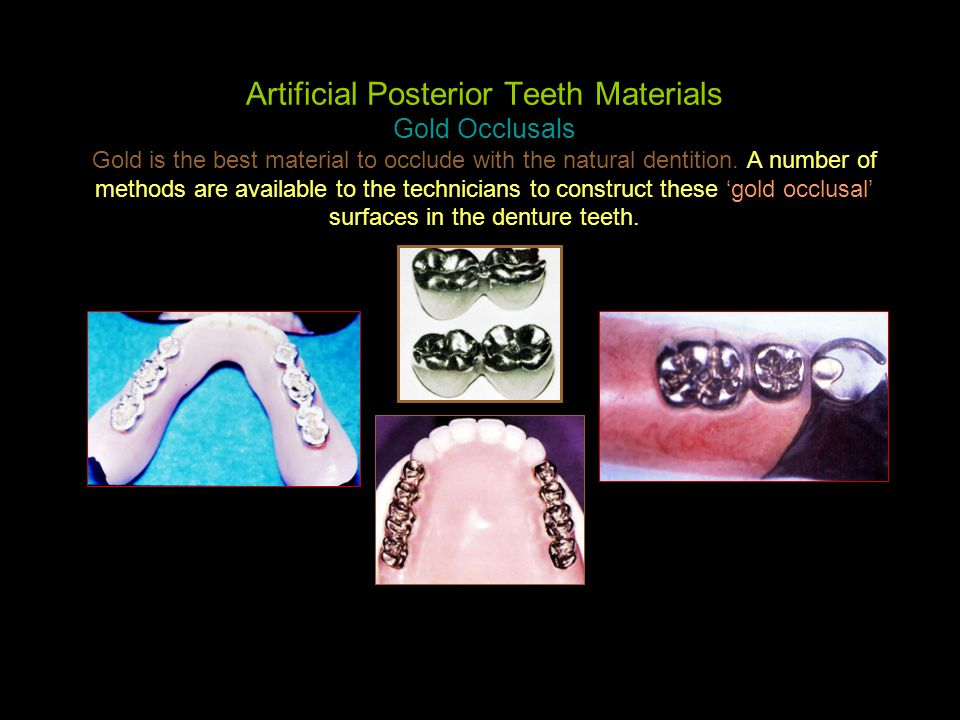 Artificial Posterior Teeth Materials Gold Occlusals Gold is the best material to occlude with the natural dentition.