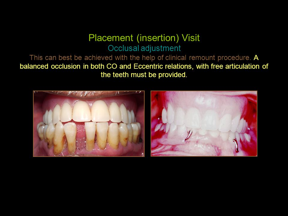 Placement (insertion) Visit Occlusal adjustment This can best be achieved with the help of clinical remount procedure.