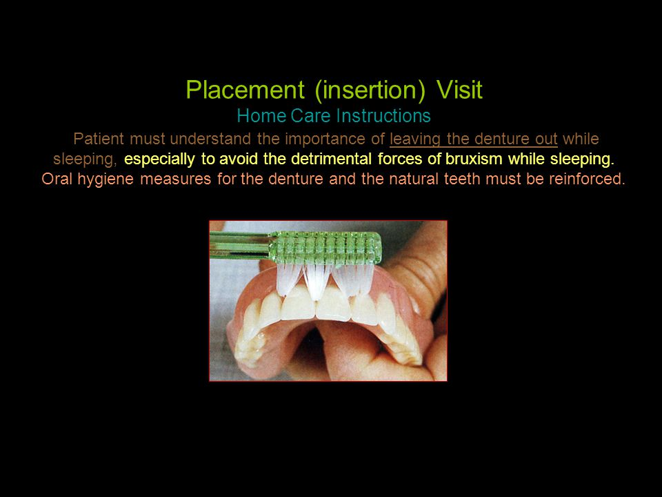Placement (insertion) Visit Home Care Instructions Patient must understand the importance of leaving the denture out while sleeping, especially to avoid the detrimental forces of bruxism while sleeping.