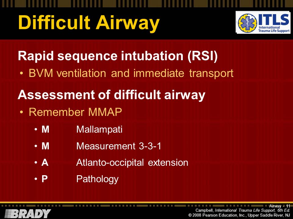 Difficult Airway Rapid sequence intubation (RSI)