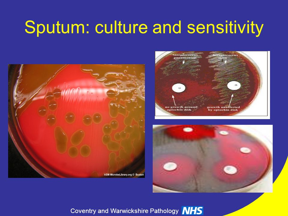 Sputum: culture and sensitivity