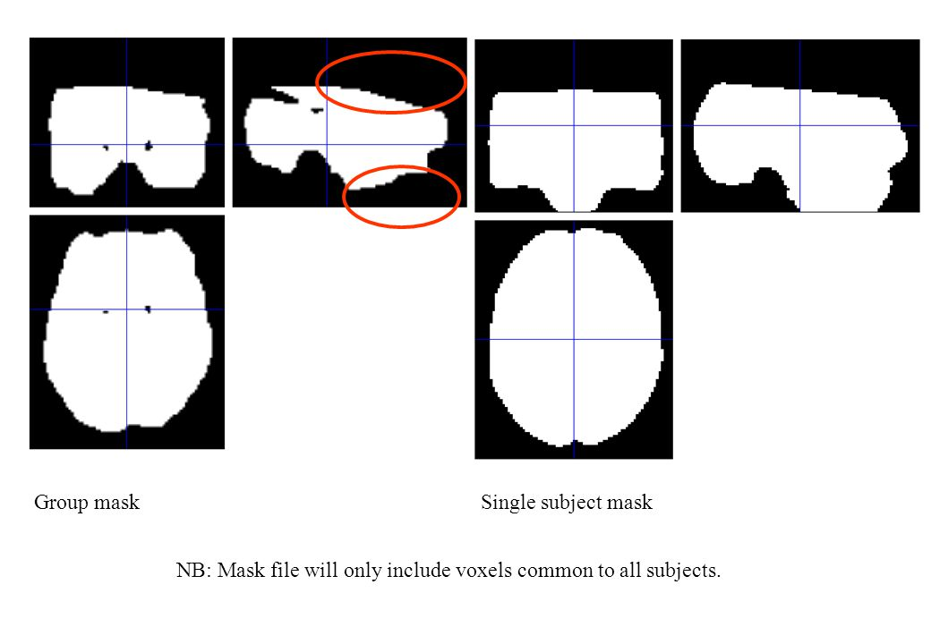 Group mask Single subject mask NB: Mask file will only include voxels common to all subjects.