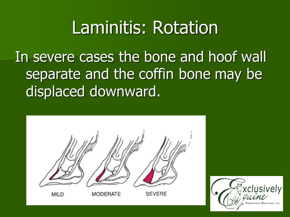 Laminitis: Rotation In severe cases the bone and hoof wall separate and the coffin bone may be displaced downward.