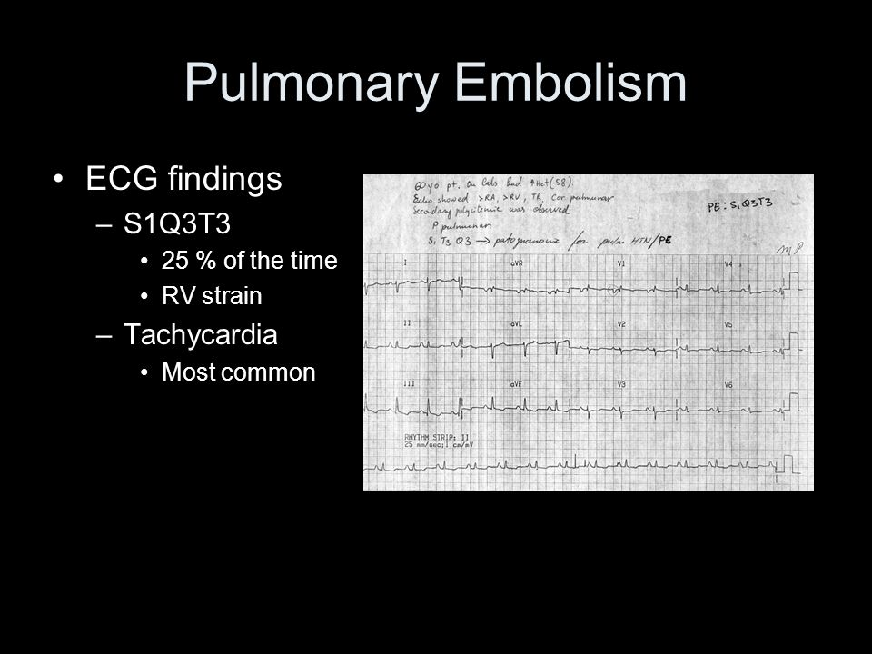 Pulmonary Embolism ECG findings S1Q3T3 Tachycardia 25 % of the time
