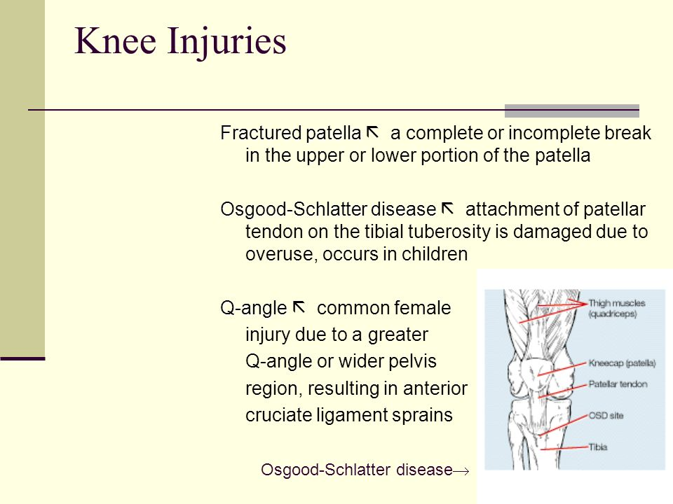 Knee Injuries Fractured patella  a complete or incomplete break in the upper or lower portion of the patella.