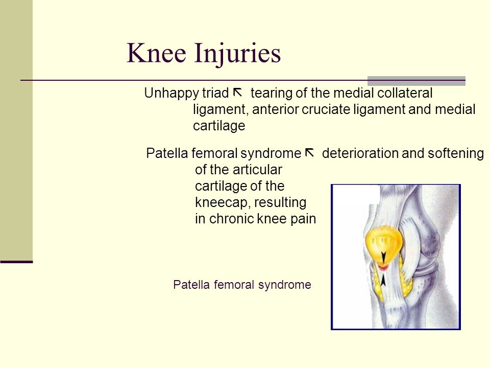 Knee Injuries Unhappy triad  tearing of the medial collateral
