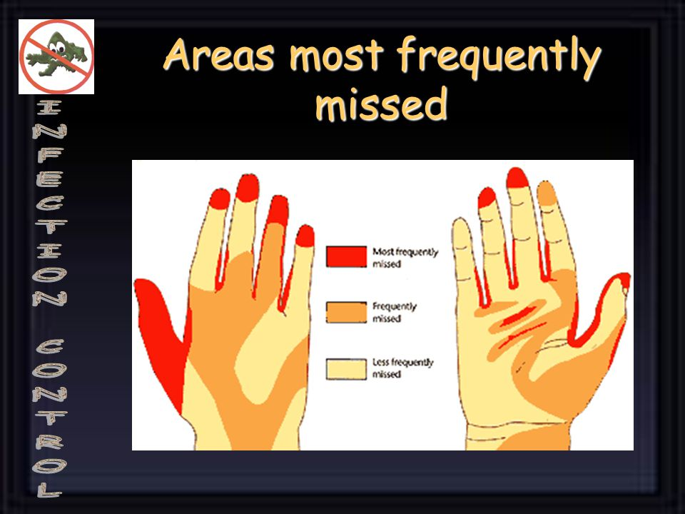 Areas most frequently missed