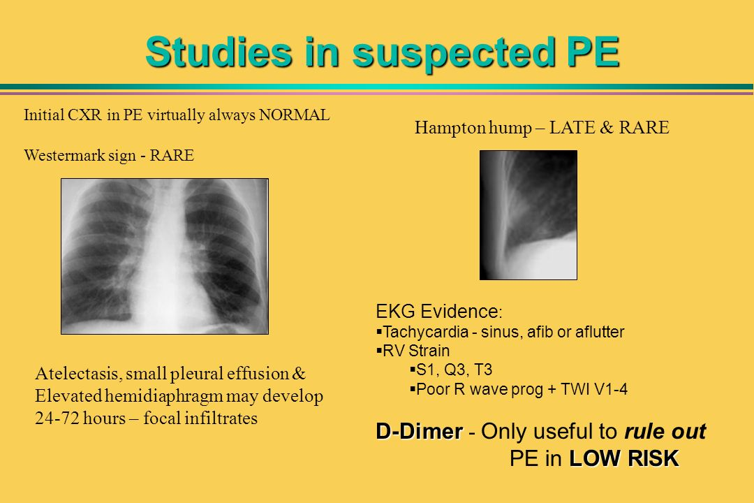 Studies in suspected PE