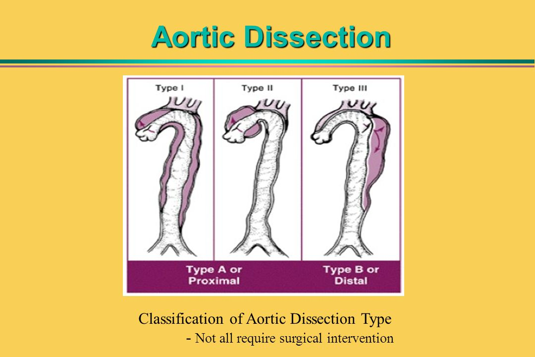 Aortic Dissection Classification of Aortic Dissection Type