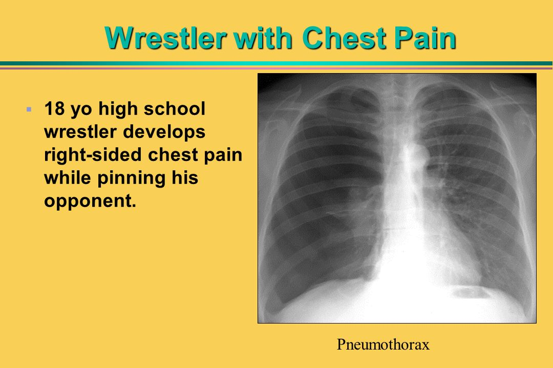 Wrestler with Chest Pain