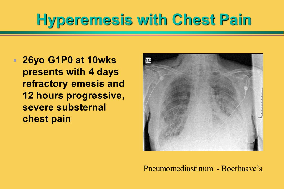 Hyperemesis with Chest Pain