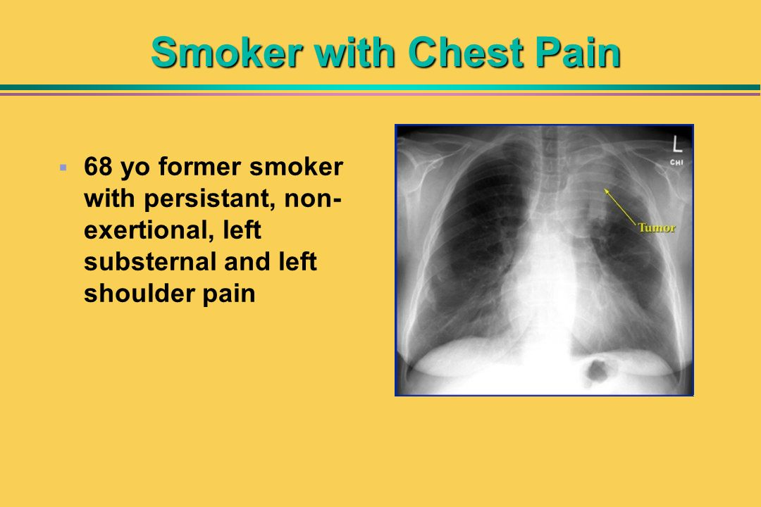 Smoker with Chest Pain 68 yo former smoker with persistant, non-exertional, left substernal and left shoulder pain.