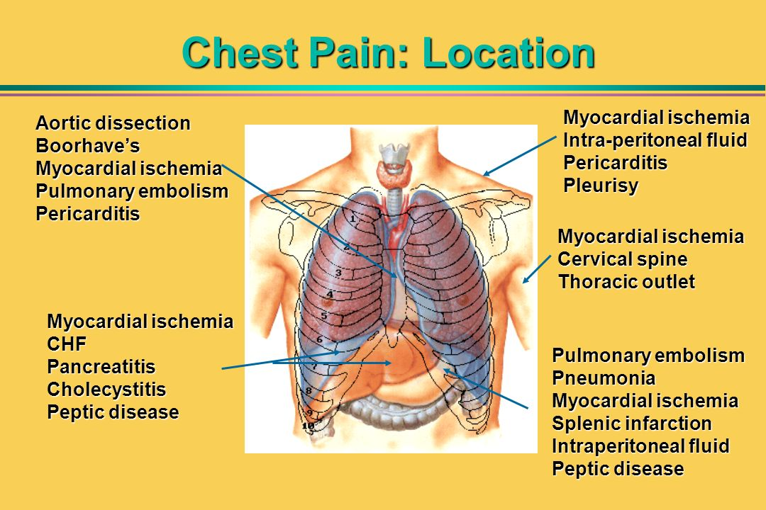 Chest Pain: Location Myocardial ischemia Intra-peritoneal fluid