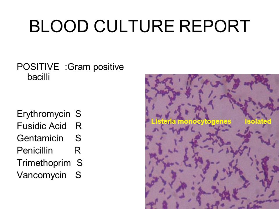 BLOOD CULTURE REPORT POSITIVE :Gram positive bacilli Erythromycin S