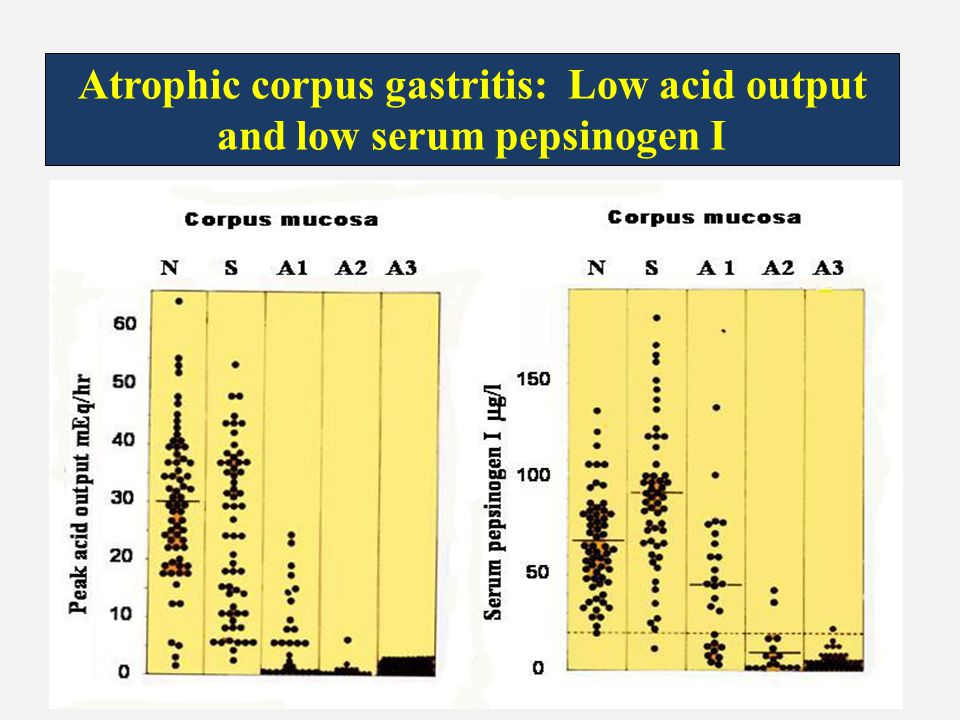 Atrophic corpus gastritis: Low acid output and low serum pepsinogen I