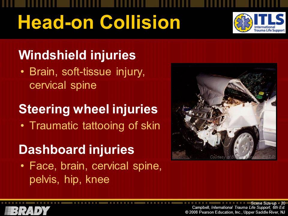 Head-on Collision Windshield injuries Steering wheel injuries