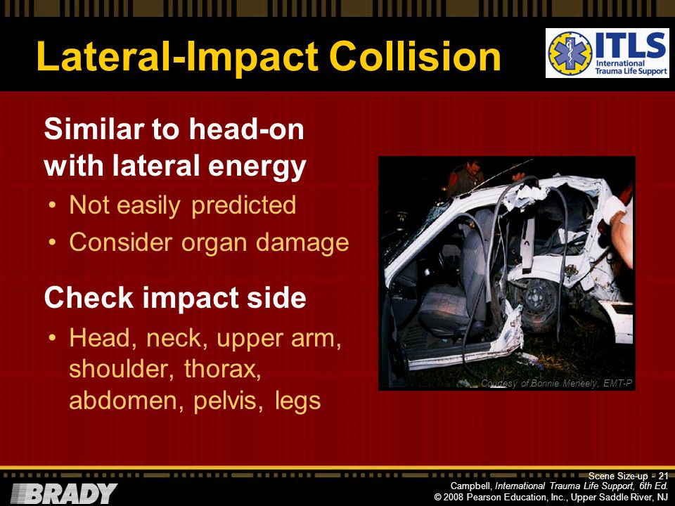 Lateral-Impact Collision