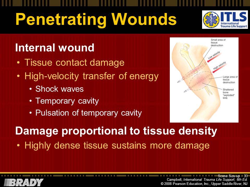 Penetrating Wounds Internal wound