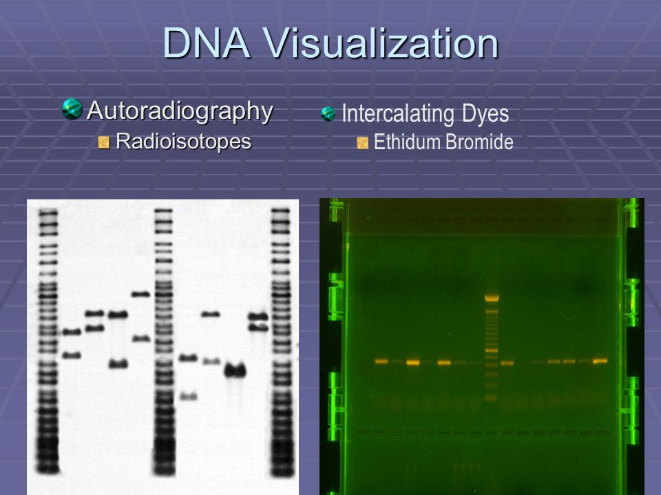 DNA Visualization Autoradiography Intercalating Dyes Radioisotopes