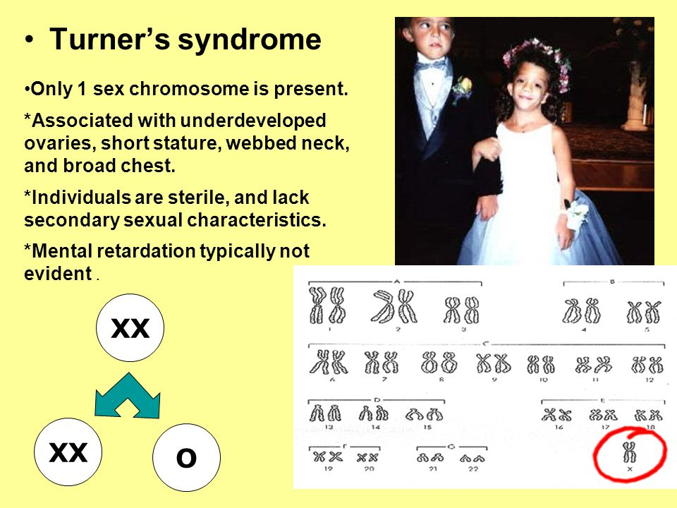 Turner's syndrome XX XX O Only 1 sex chromosome is present.