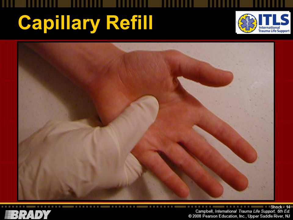 Capillary Refill NOTE: This slide is setup slide for next with progression. TALK ABOUT REFILL HERE—demo next slide.