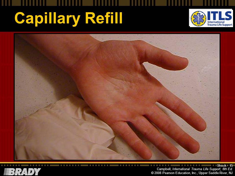 Capillary Refill NOTE: Progression Shock -