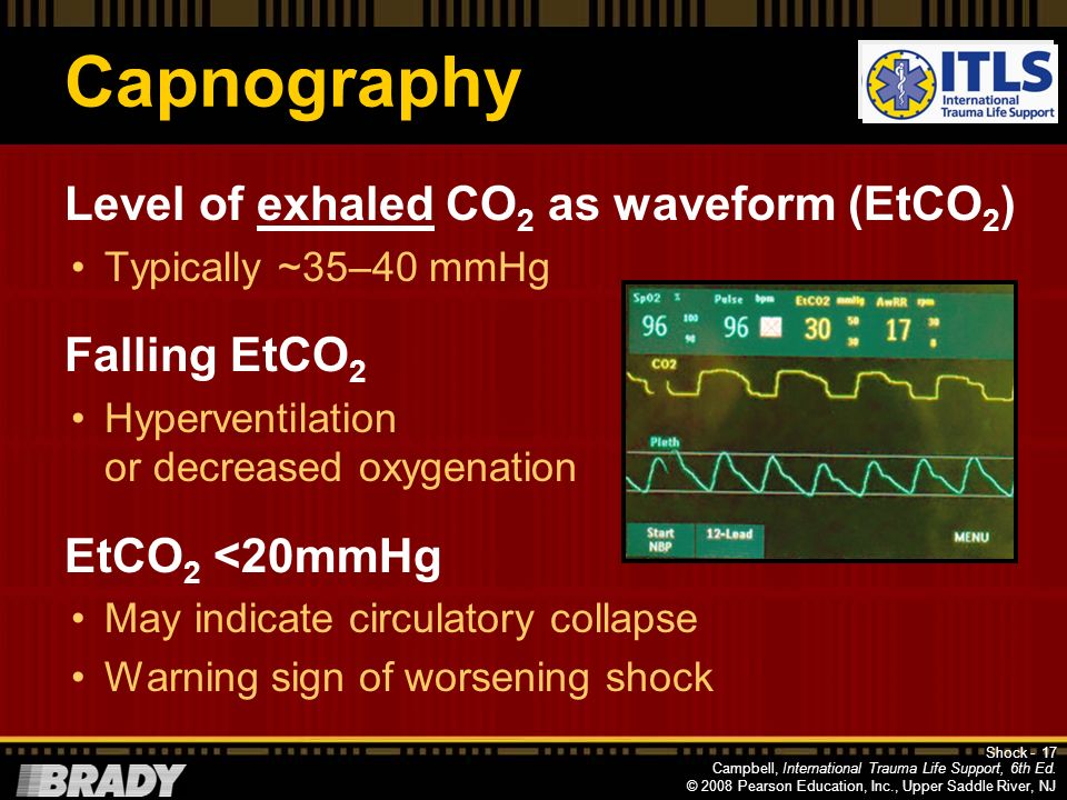 Capnography Level of exhaled CO2 as waveform (EtCO2) Falling EtCO2