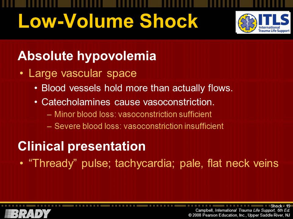Low-Volume Shock Absolute hypovolemia Clinical presentation