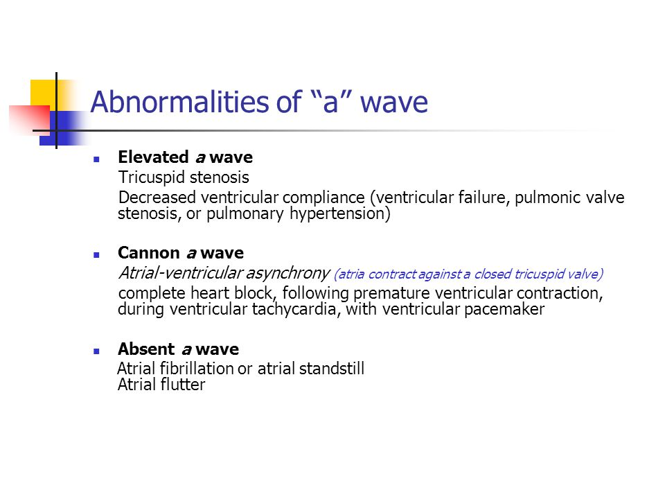 Abnormalities of a wave
