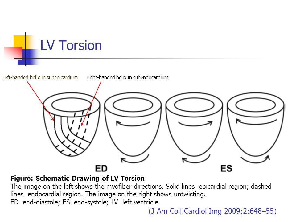 LV Torsion (J Am Coll Cardiol Img 2009;2:648–55)