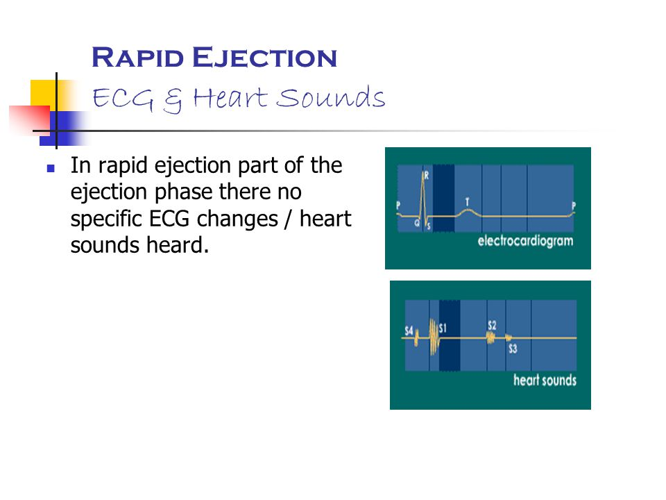 Rapid Ejection ECG & Heart Sounds